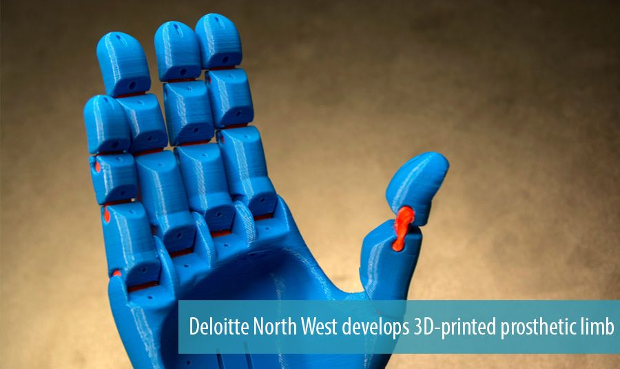 Deloitte North West develops 3D-printed prosthetic limb